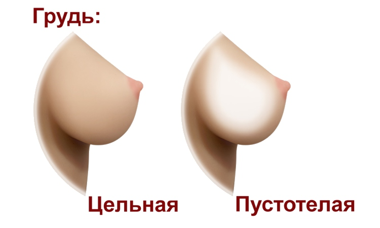 D4E Breasts option (rus)