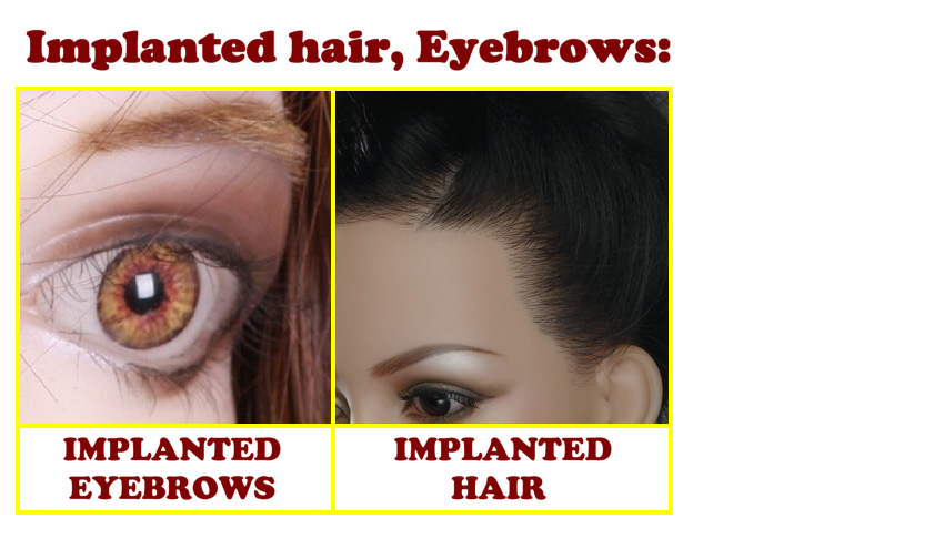 Sino Implanted hair, Eyebrows EN