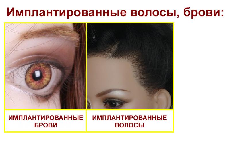 Sino Implanted hair, Eyebrows RU